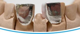 CELOKERAMICKÉ FAZETY - Profi Dental Design s.r.o.