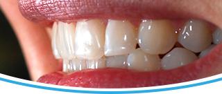 Pekný úsmev - Profi Dental Design s.r.o.
